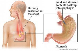 effects-of-heartburn-on-the-voice-300x195