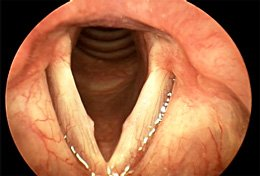 Vocal folds ailments